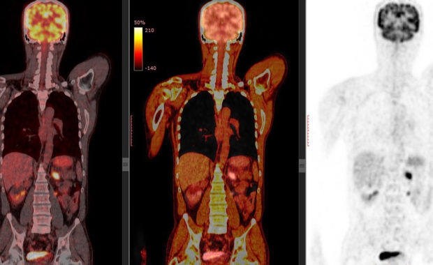 Positron Emission / Computed Tomography (PET/CT)